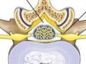 Alternatives Laminectomy
