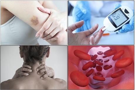 Herbal Treatment of Glycogen Storage Disorder