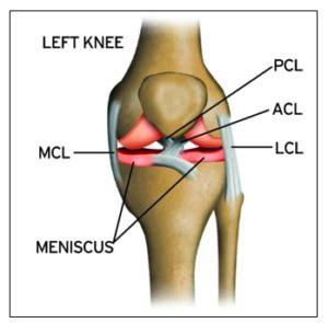 While factors like what your pain feels like—stabbing, burning, or cramping, and so on—can provide insight, oftentimes, a detailed physical examination and/or an imaging test are needed to clinch the diagnosis. MCL Surgery, Repair & Treatment - Knee Pain & Injuries