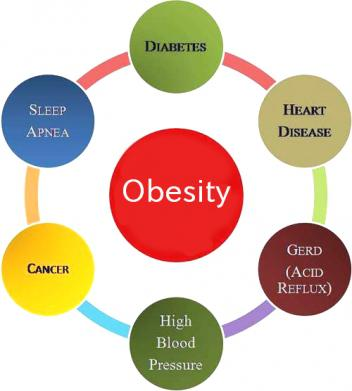 obesity is not a disease essay Good fortune to have access to abundant food have not  essay the lancet  • vol 351 • march 21, 1998 903 obesity is a disease: food for thought.