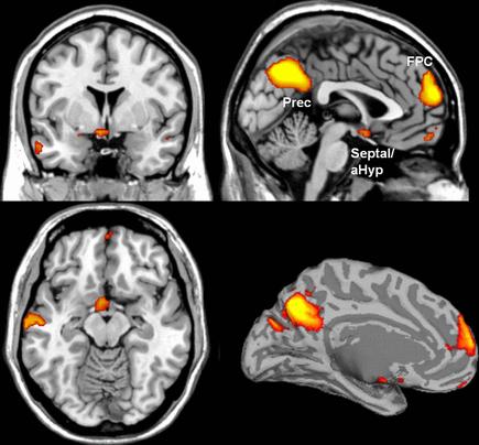 Neural signature of affiliative emotions.