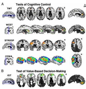 Distinct prefrontal areas regulating cognitive control and value decisions.