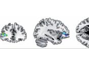 Combat Stress Causes Long Term Changes Brain Connectivity.