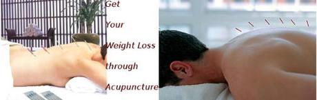 Weight Loss Through Acupuncture