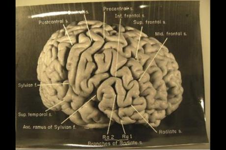 EINSTEIN'S BRAIN SHOW UNIQUE FEATURES
