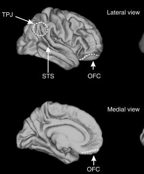 Enhancing social ability with brain stimulation.