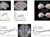 Brain Plasticity Induced Musical Training.