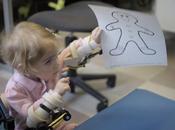 Artrogryposis Magic Arms Toddler