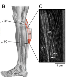 The location of the gastrocnemius (b) and the longer fibers identified in the Twa (c)