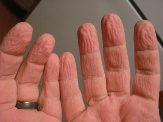 Do our fingers wrinkle in the wet to improve our grip?
