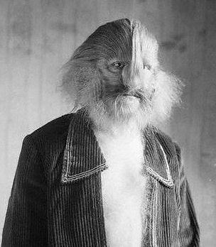 10 Most Incredible Hairy People