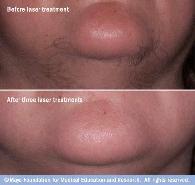 Photo showing before-and-after results of laser hair removal