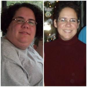 Marlee's Before and After Gastric Sleeve Surgery Photos & Story