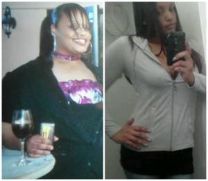 Before and After Gastric Bypass Photos & Story