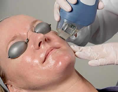 woman having laser treatment