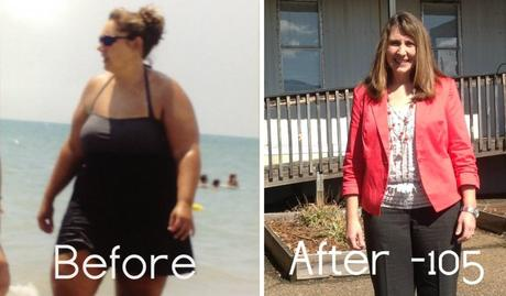 Tracy S Amazing 105 Pound Weight Loss Story And Photos Beliteweight Services