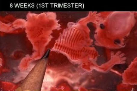 8-week-aborted-fetus