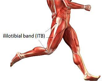 Treatment for IT Band Syndrome (Runner's Knee)