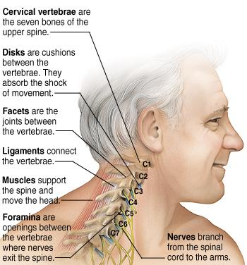 A Pain in the Neck:  What To Do About Neck Pain