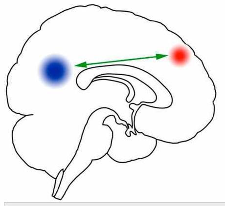Alteration of paralimbic self awareness circuits in behavioral addiction.