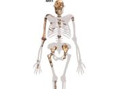 Australopithecus Sediba: Human Accident?