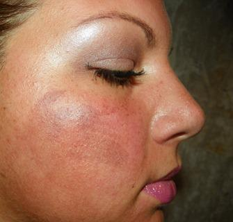 Only ejaculated facial chemical burns from peel say very