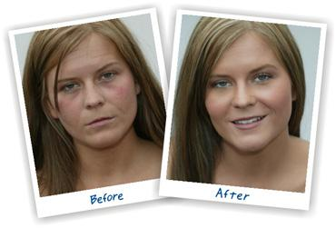 how to get rid of under eye circles photoshop