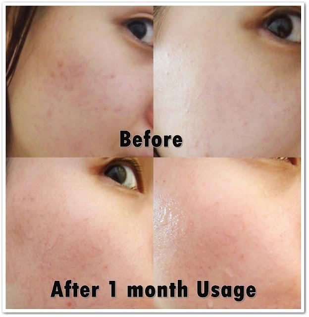 blue laser treatment for acne 4 months
