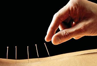 weight-loss-through-acupuncture-T-mmhL2W.jpeg