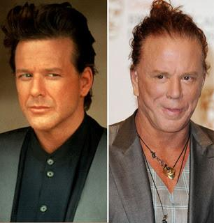 Mickey Rourke Plastic Surgery