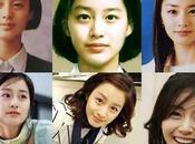 Easy Admission Against Korean Plastic Surgery Before After