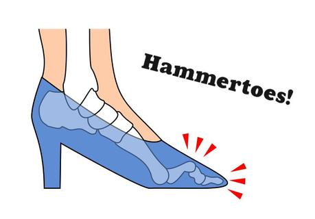 Hammertoes Cause and Cure