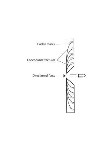 15-3 Conchordial fracture lines jpeg