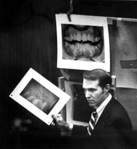 Bundy's Teeth