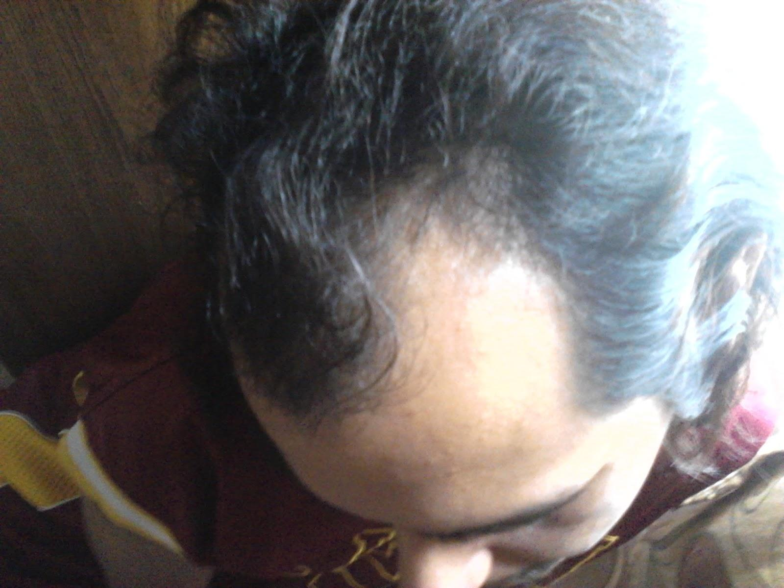 My Husband's Hair Regrowth Journey