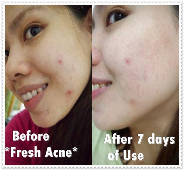 MOSBEAU: Spotless White Green Facial Soap Review - Paperblog
