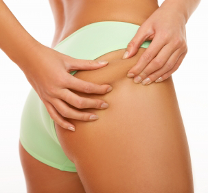 How to Get Rid of Cellulite (The Easy And Natural Way)