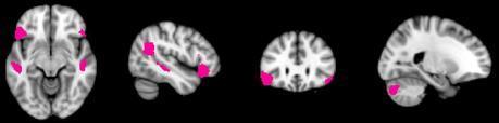 The Real Neuroscience of Creativity