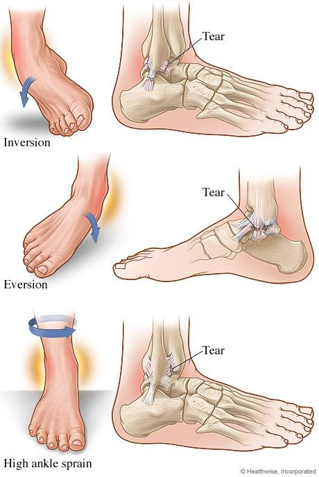 injuries essays strains Strains and sprains one of the most common sports injuries to today's young athletes when you think of sports injuries you think of things like broken.