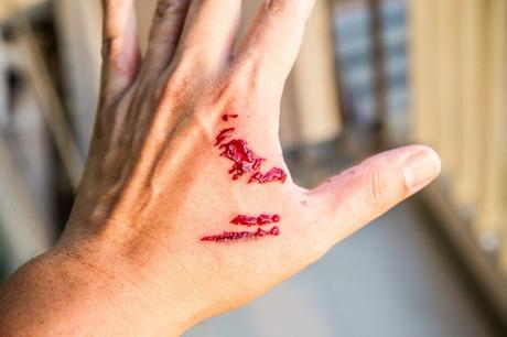 8 Crucial Steps To Take After A Dog Bite Incident