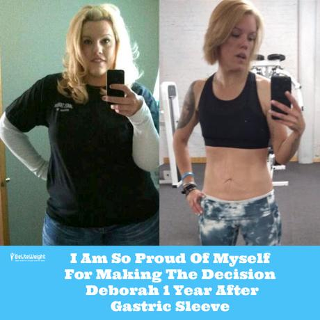I Am So Proud Of Myself For Making The Decision – Deborah 1 Year After Gastric Sleeve