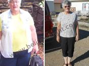 Carolyn's Medicare Paid Gastric Bypass Success Story