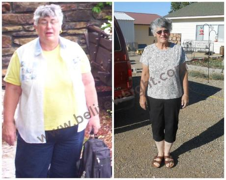 Carolyn S Medicare Paid Gastric Bypass Success Story Paperblog