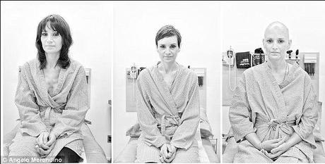 photo essay wife breast cancer
