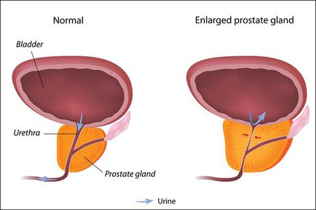 Best Ancient Herbs and Remedies for Restoring Healthy Prostate