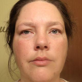 My Morning With Angioedema 690788
