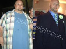 Brian's Long Term Gastric Sleeve Success Story