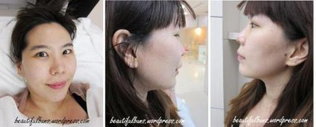 The Face Aesthetic Clinic (12)
