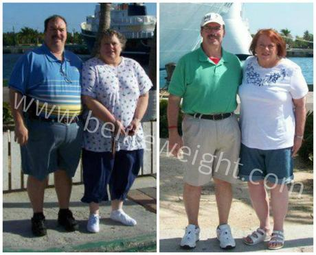 Almost Divorced Over Weight Loss Surgery In Mexico