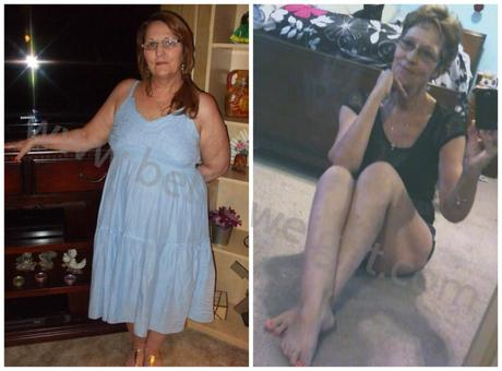 Medicare Paid Gastric Bypass Surgery – Brenda's Weight Loss Story